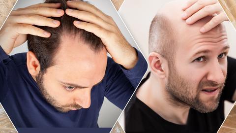 Haartransplantation Männer Collage