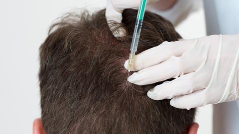Haartransplantation Spritze